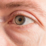 What Is Eye Bag Surgery, And Can It Make You Look Younger?