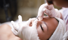 Facial Extraction Treatment